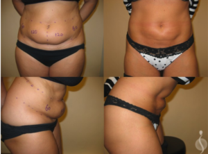 Liposuction | Suria Plastic Surgery FL