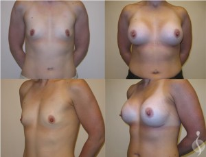 Breast Augmentation Plantation | breast implants fl