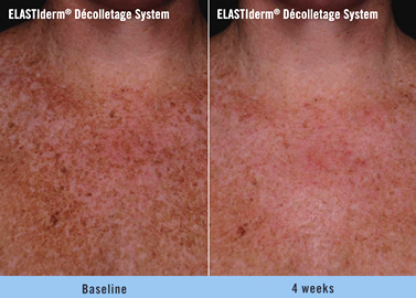 ELASTIderm décolletage system before and after fort lauderdale