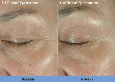 elastiderm before and after fort lauderdale