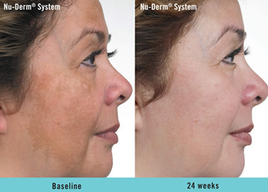 nu derm before and after fort lauderdale