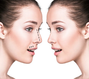 Nose Surgery Rhinoplasty | Suria Plastic Surgery