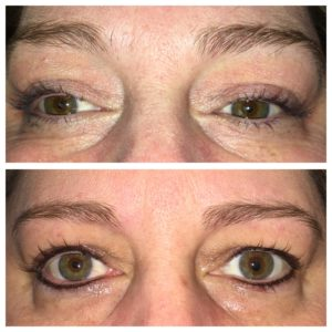 Permanent makeup before and after | Suria Plastic Surgery FL