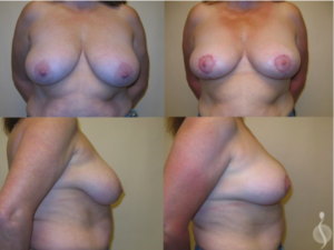 Breast Lift | Suria Plastic Surgery FL