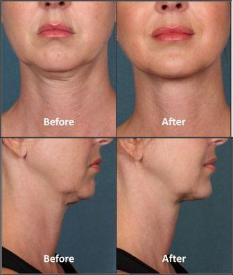 kybella double chin removal plantation fl, fort lauderdale , miami