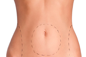 Body Contouring florida | Suria Plastic Surgery
