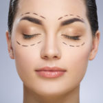 Eyelid Surgery Plantation, FL